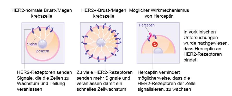 Wie Herceptin auf Brustkrebszellen wirkt. (Quelle: Siehe Verweis 1)